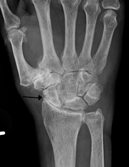 scaphoid scaphoid artritisz