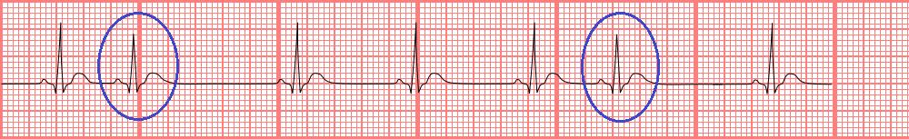 premature atrial contraction, public domain