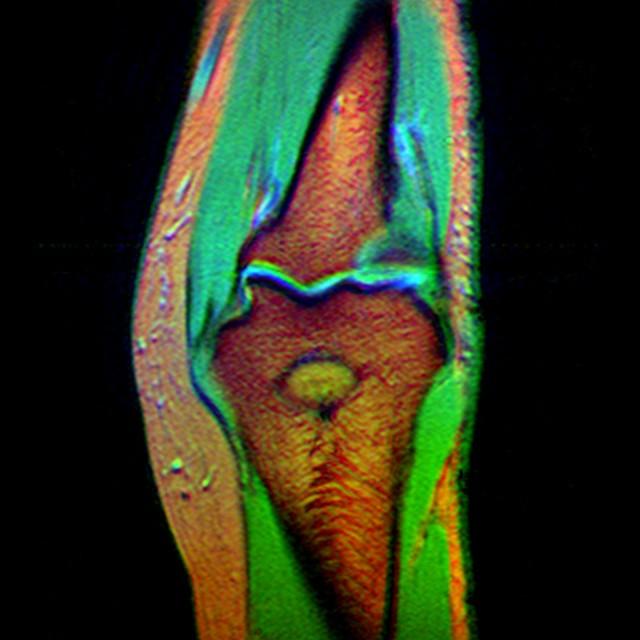 Categorypopeye Elbow Mri Wikimedia Commons