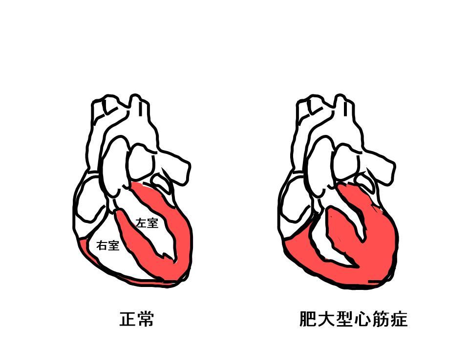 心筋 症 大型 肥