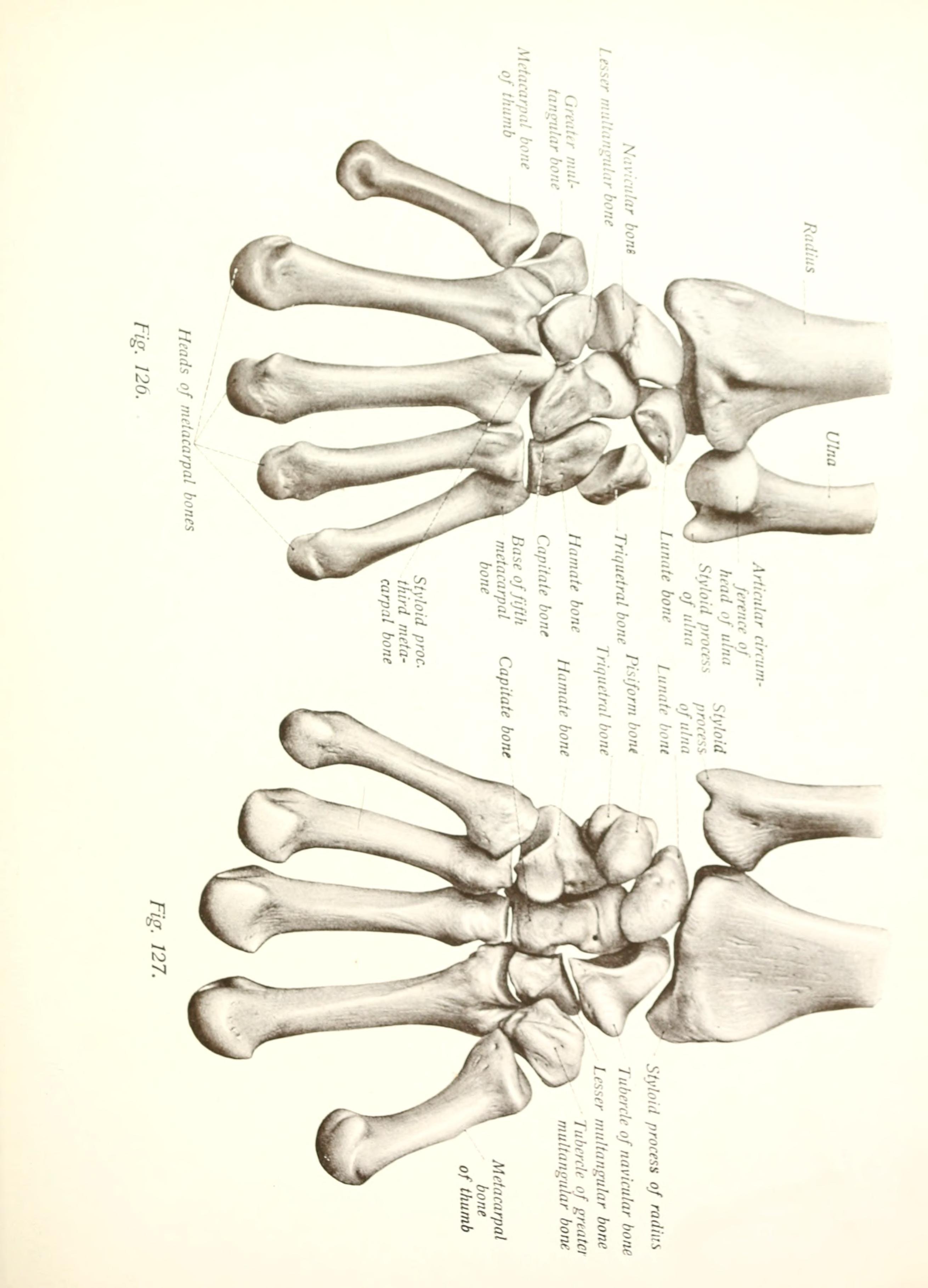 numbered metacarpals bone - HD3250×2144