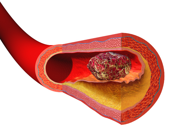 Virchow's triad + describes the pathogenesis of thrombus formation: