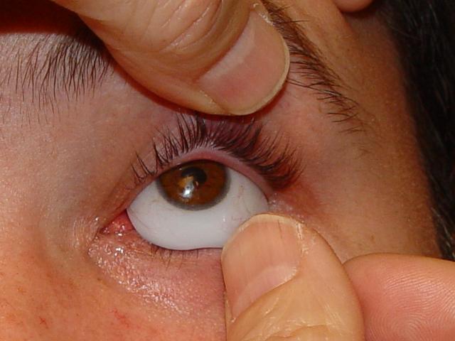 Protesis oculares precios