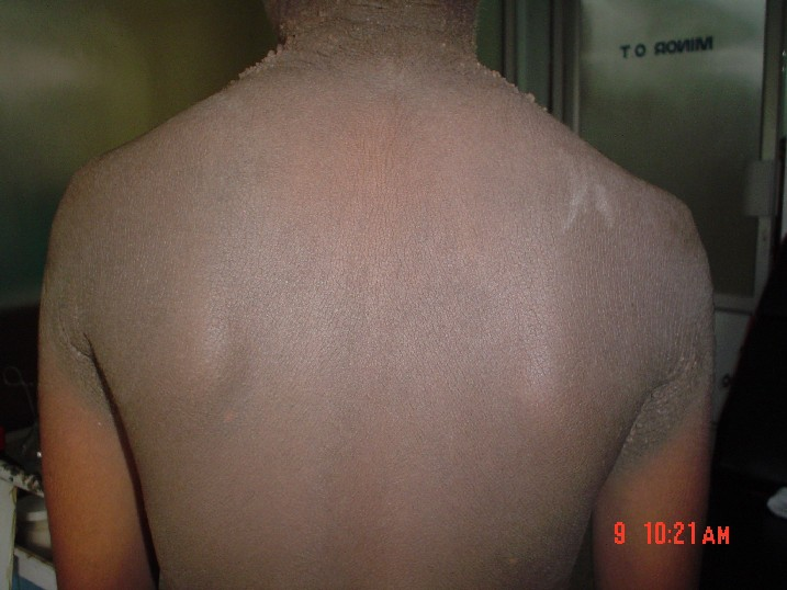 dark patch of dry skin on back