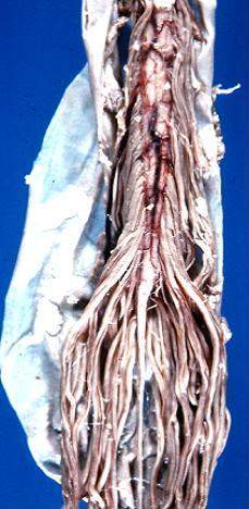 Human caudal spinal cord anterior view.jpg