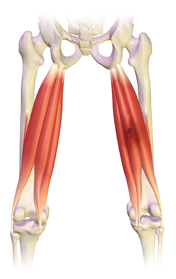 File:Pulled Hamstring.jpg - Wikimedia Commons