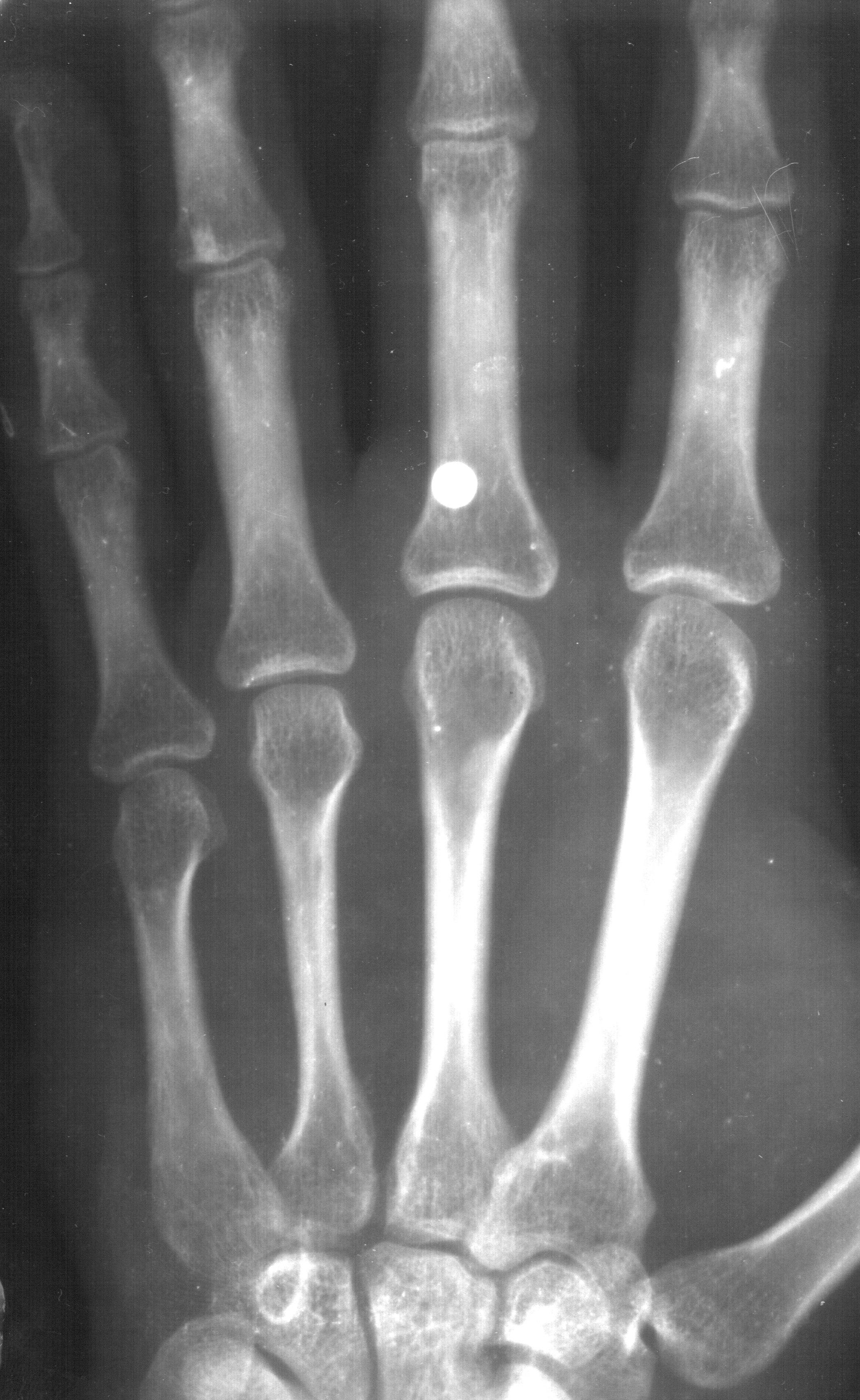 File:Steel BB in hand - X-ray.jpg - Wikimedia Commons