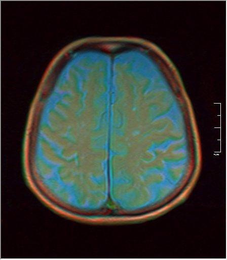 Brain MRI 0198 04.jpg