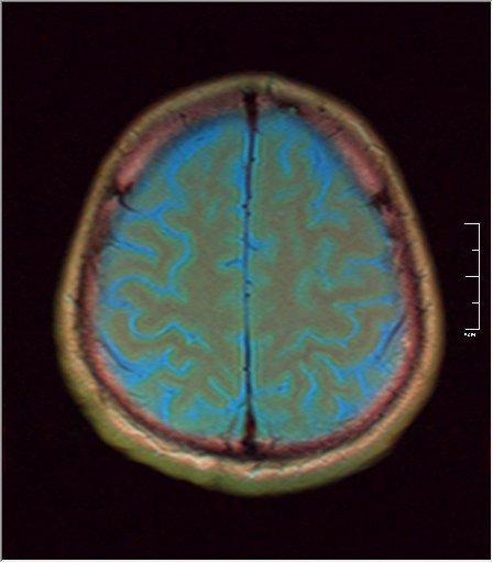 Brain MRI 0211 03.jpg