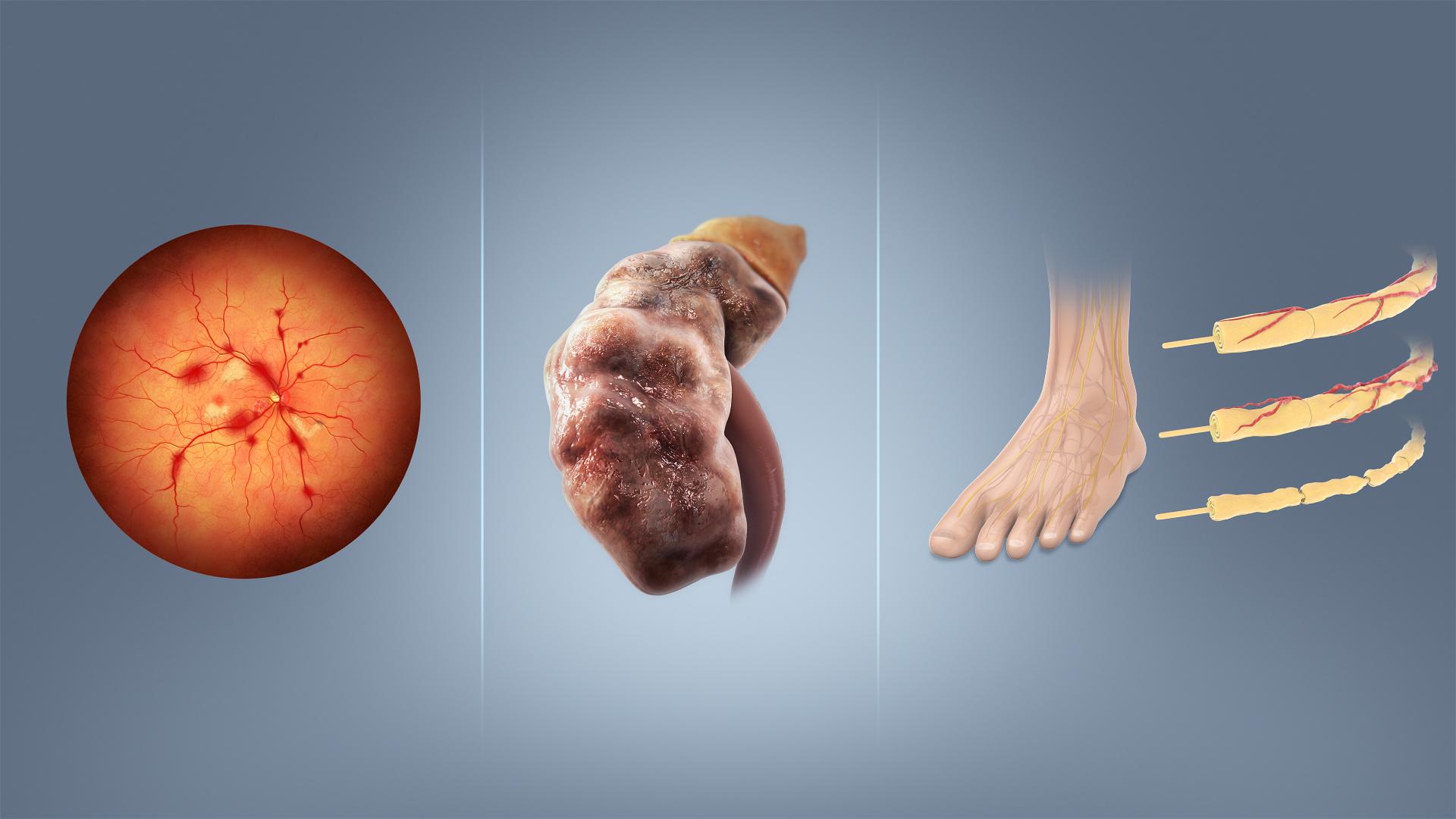 diabetes gestacijski vrednosti secera