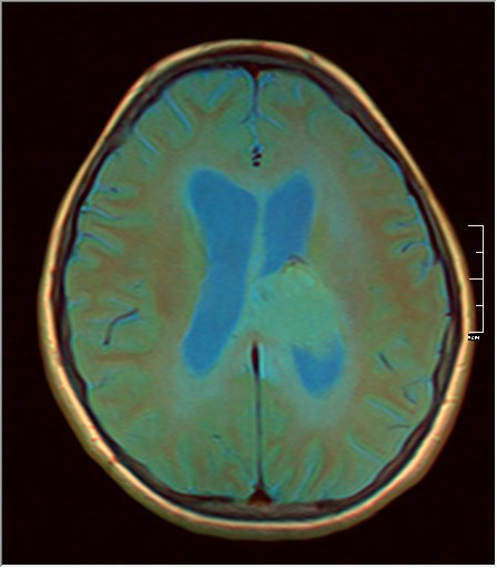 Brain MRI 0199 08.jpg