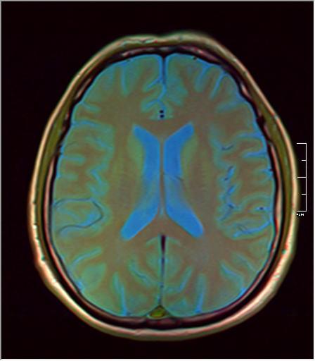 Brain MRI 293 08.png