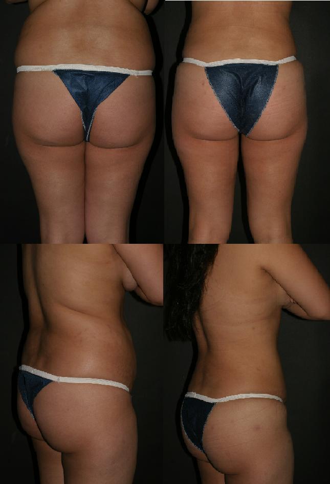 Description Buttock Augmentation Before & After.JPG