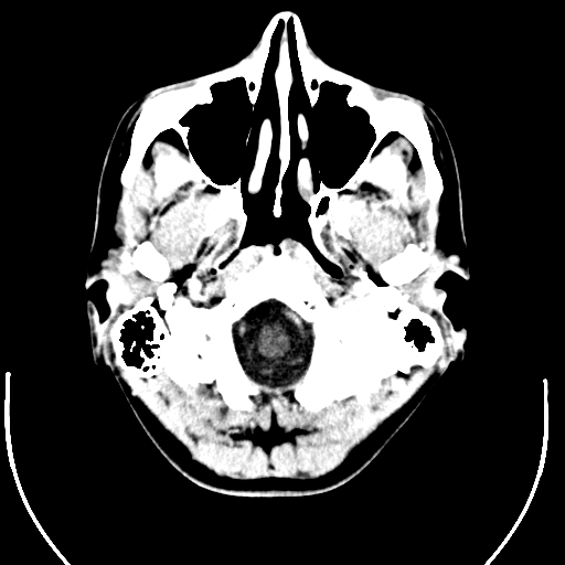 Computed tomography of human brain (1).png