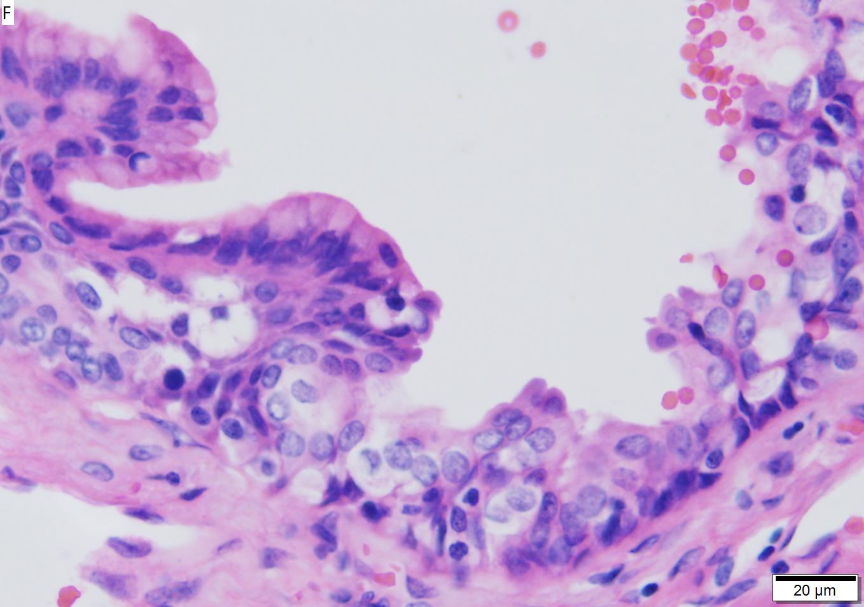 Mucinous cystic neoplasm of pancreas