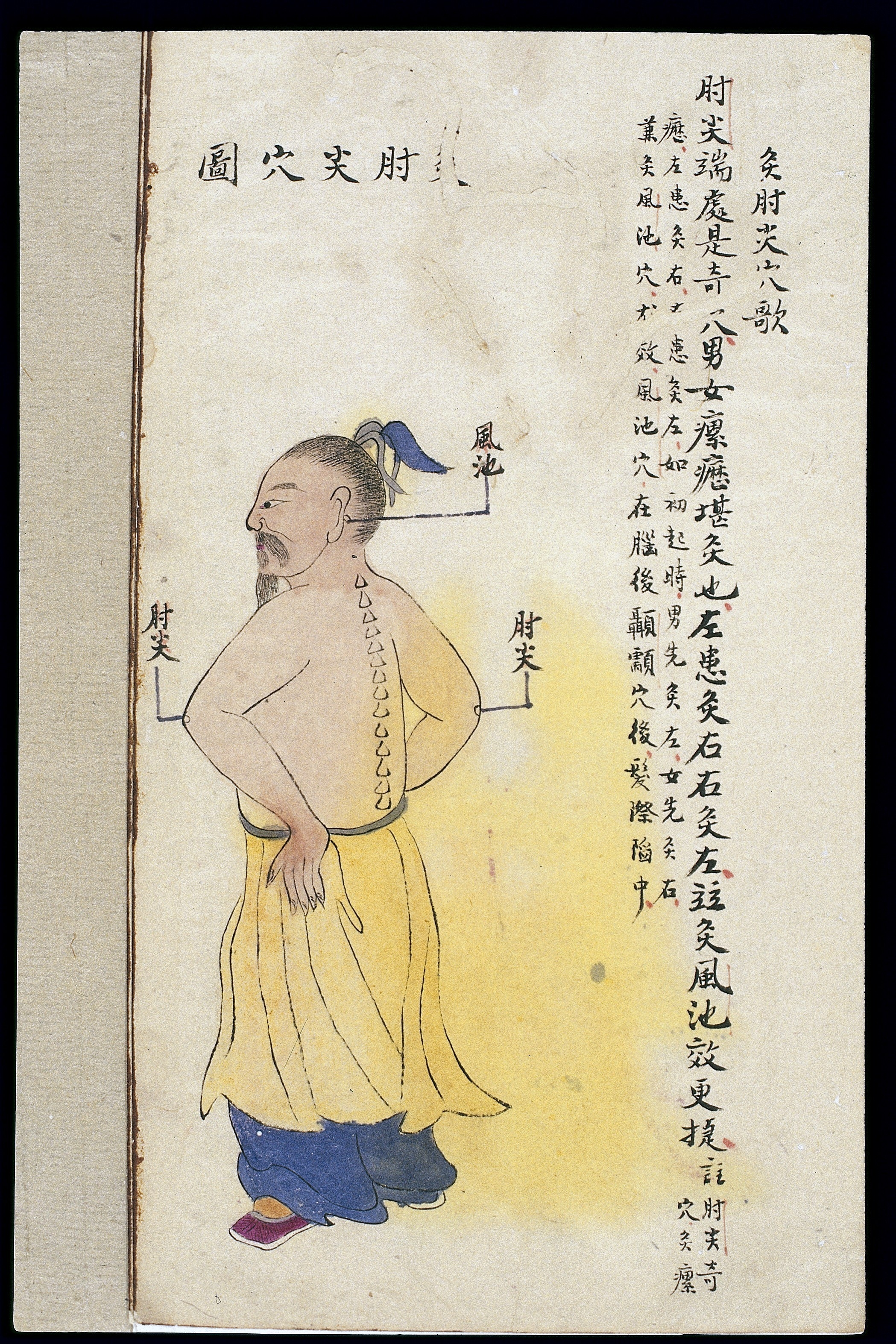 Trigger Points Chart: C19 Chinese MS moxibustion point chart; Zhoujian Wellcome ,Chart