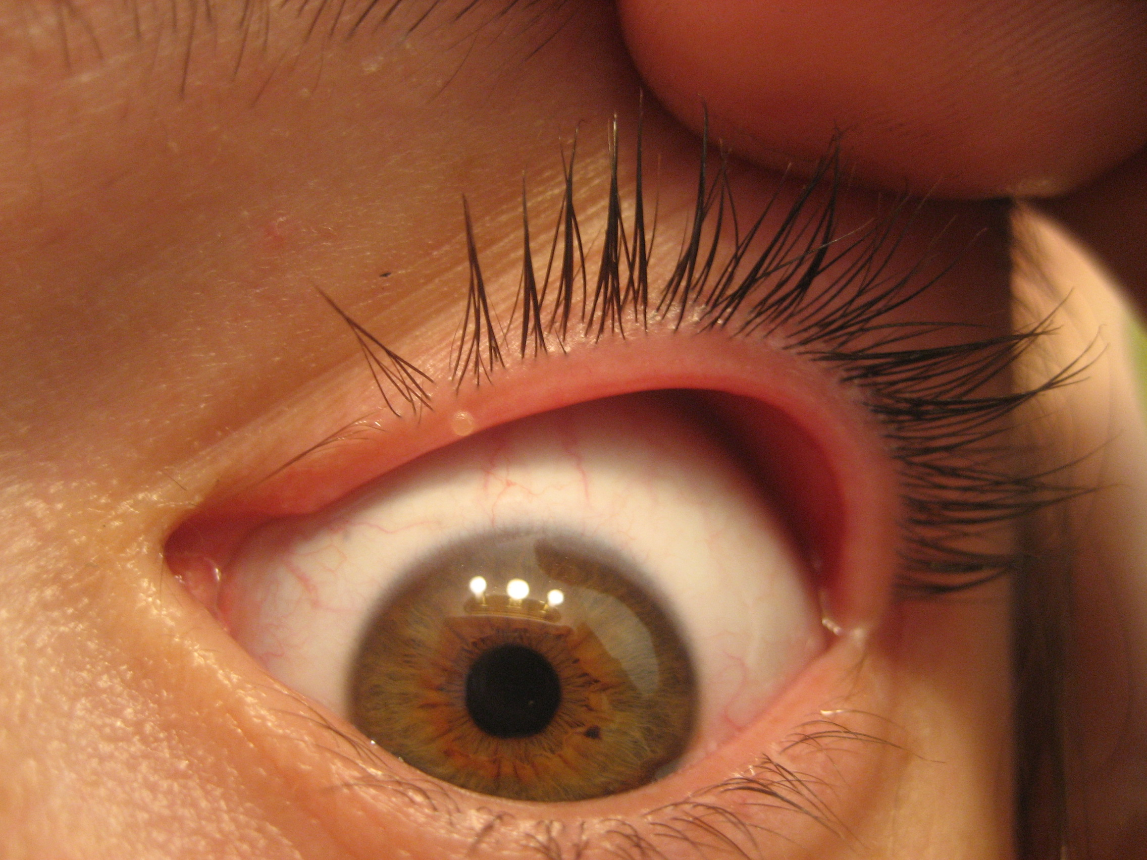 White spot on eyelid! What could it be!? (photo) Doctor ...