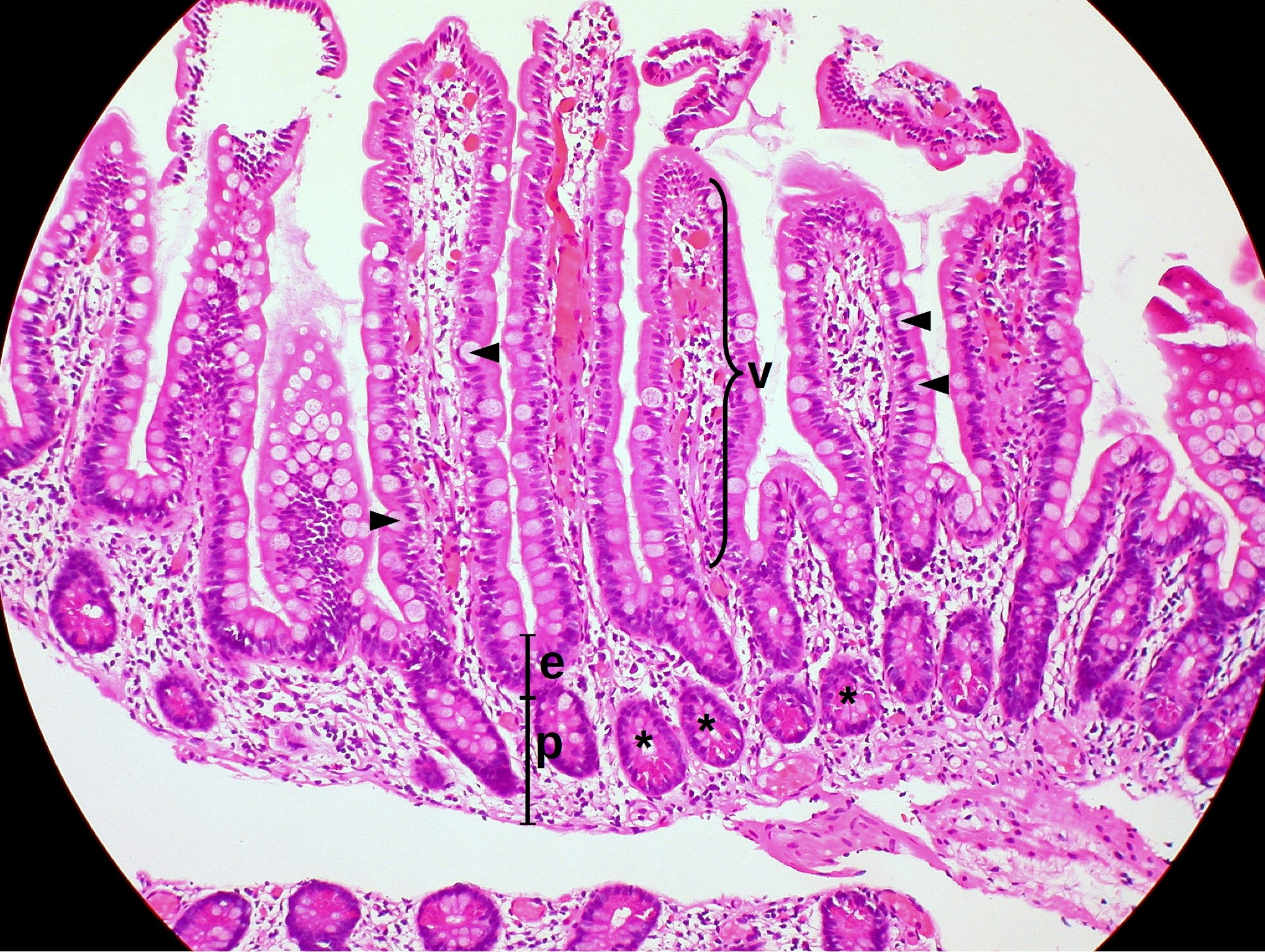 Normal Small Intestine Mucosa (5916217283).jpg