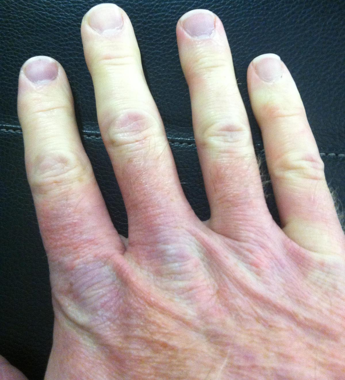 Finger Numb From Gymnastic Rings