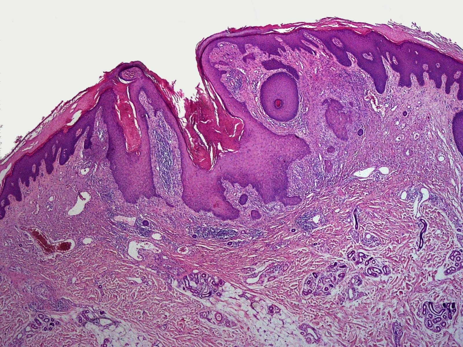 Dilated pore - Wikipedia