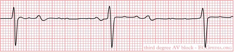 De-Rhythm 3rdAVblock (CardioNetworks ECGpedia)