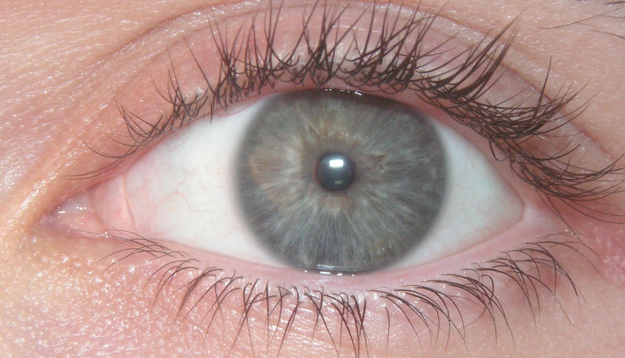 Image Result For Eye Color Laser