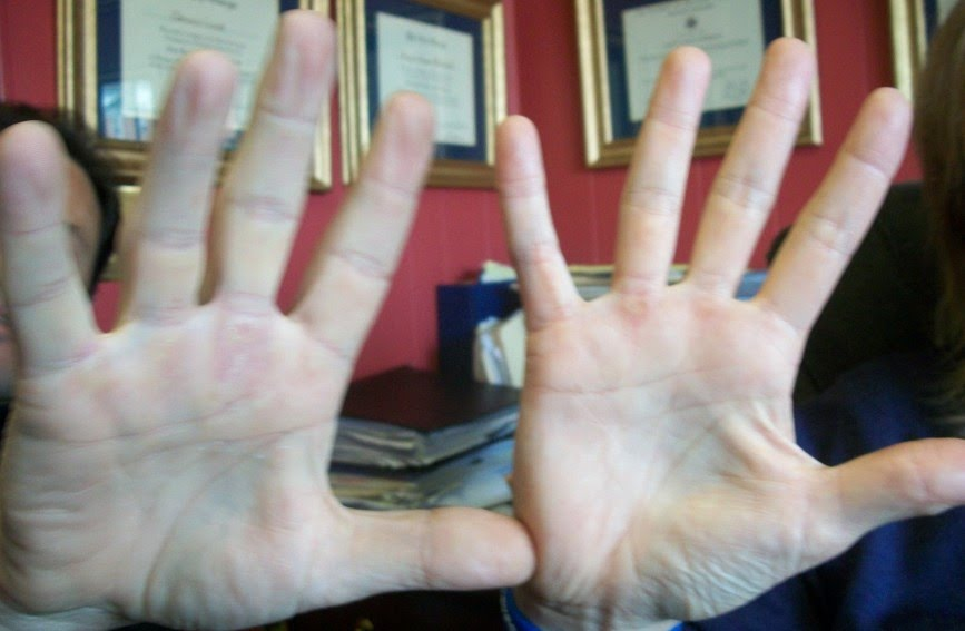 Description hand comparison