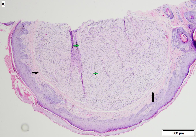 Palisading/encapcuslated neuroma