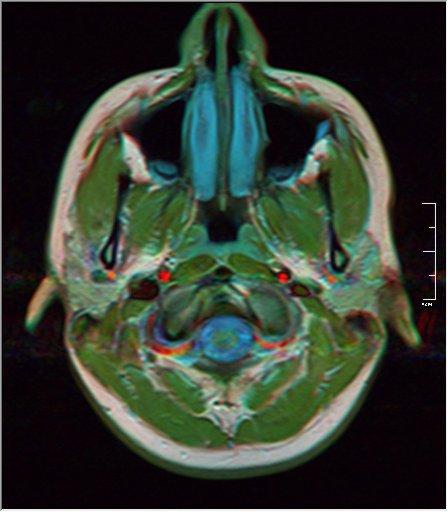 Brain MRI 0189 20.jpg
