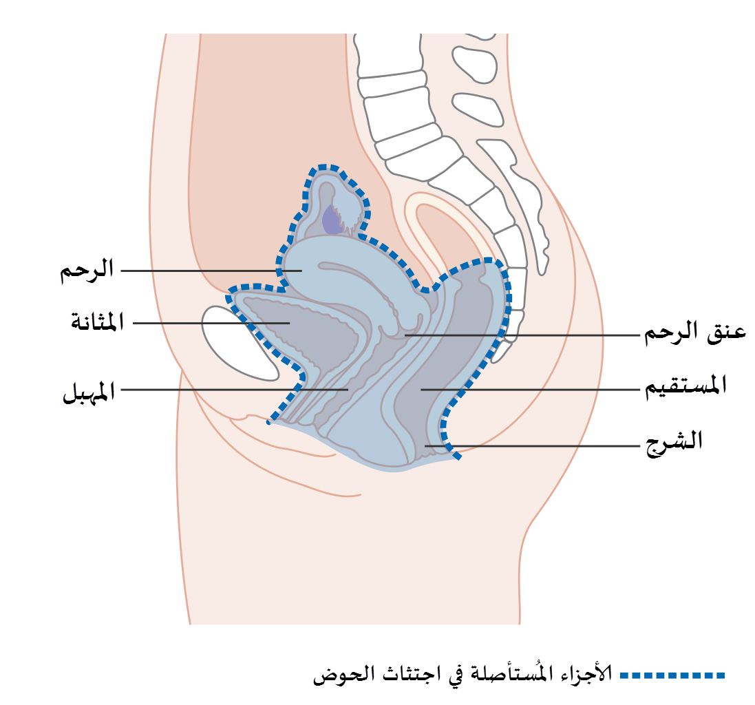 Diagram Showing The Area Removed With A Total Exenteration