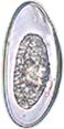 E. vermicularis egg.png