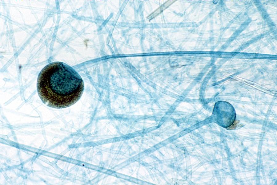 Rhizopus stolonifer - WikiwandRhizopus Sporangia