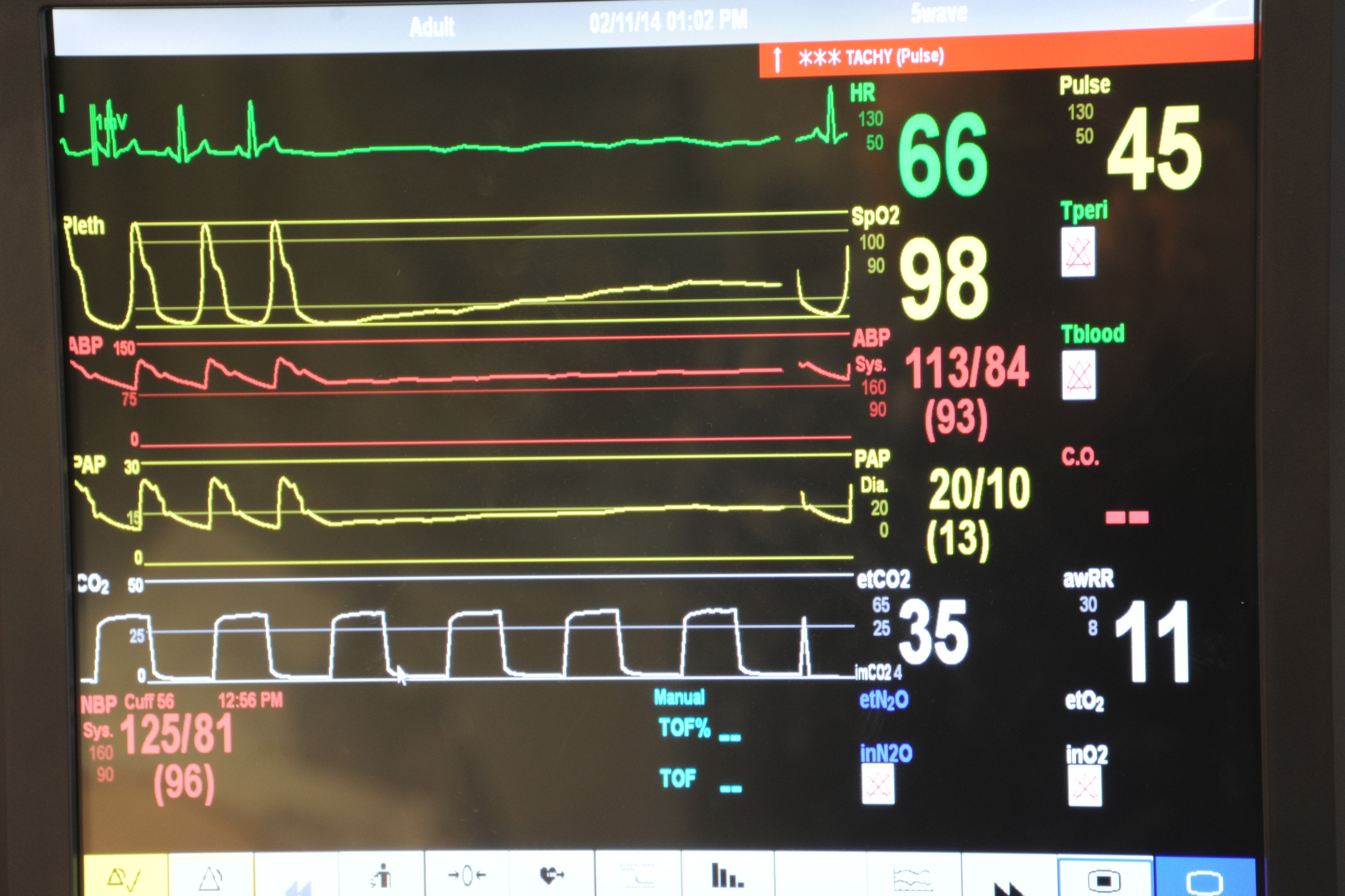 Vital Signs Monitoring Devices