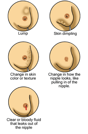 Early signs of breast cancer.