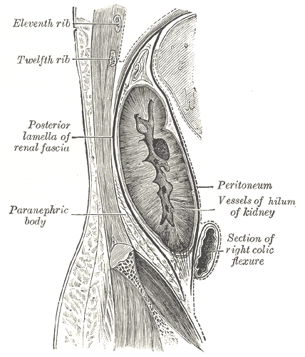 Loin Pain Hematuria Syndrome Wikipedia