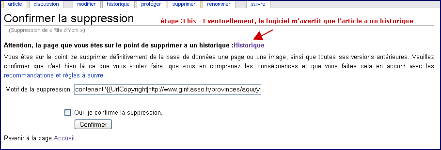 Suppression d'article avec historique