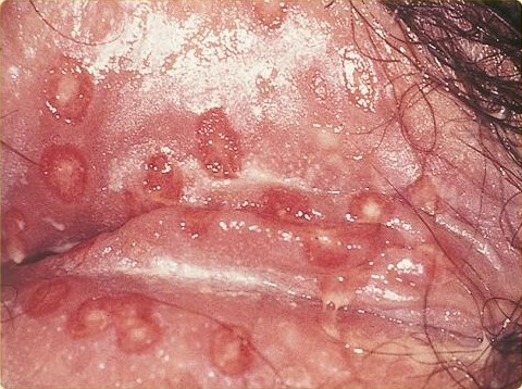 Sexually transmitted diseases pictures herpes virus