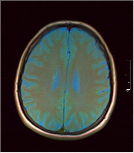 Brain MRI 0076 06.jpg