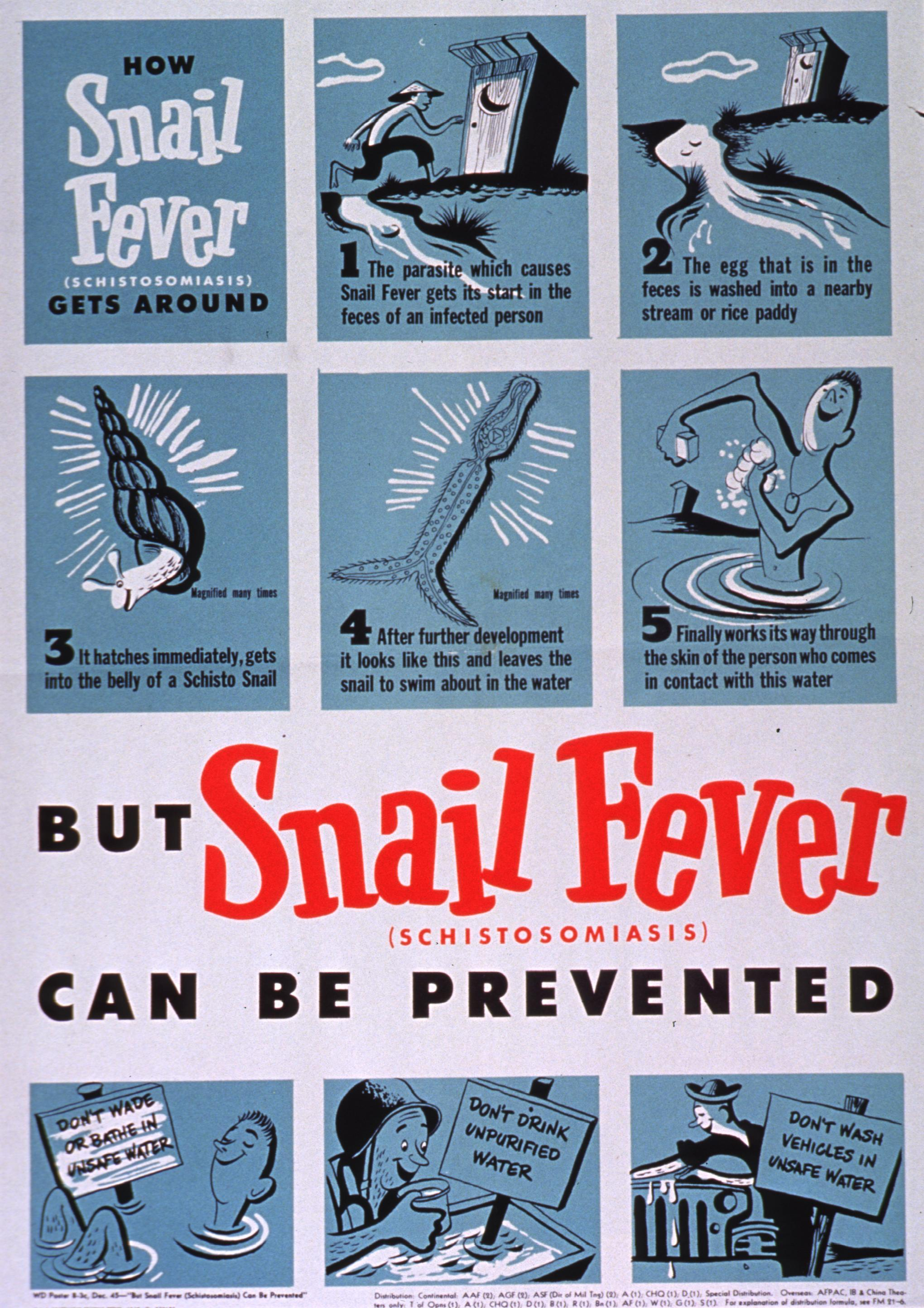schistosomiasis fever