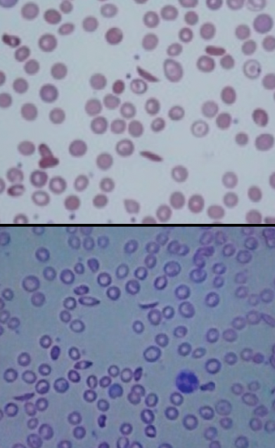 Filecomparison Of Sickle Cell Anemia As Viewed With Traditional And