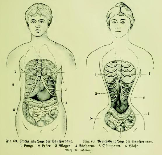 Datei:Die Frau als Hausärztin (1911) 069 070 Natürliche und ...
