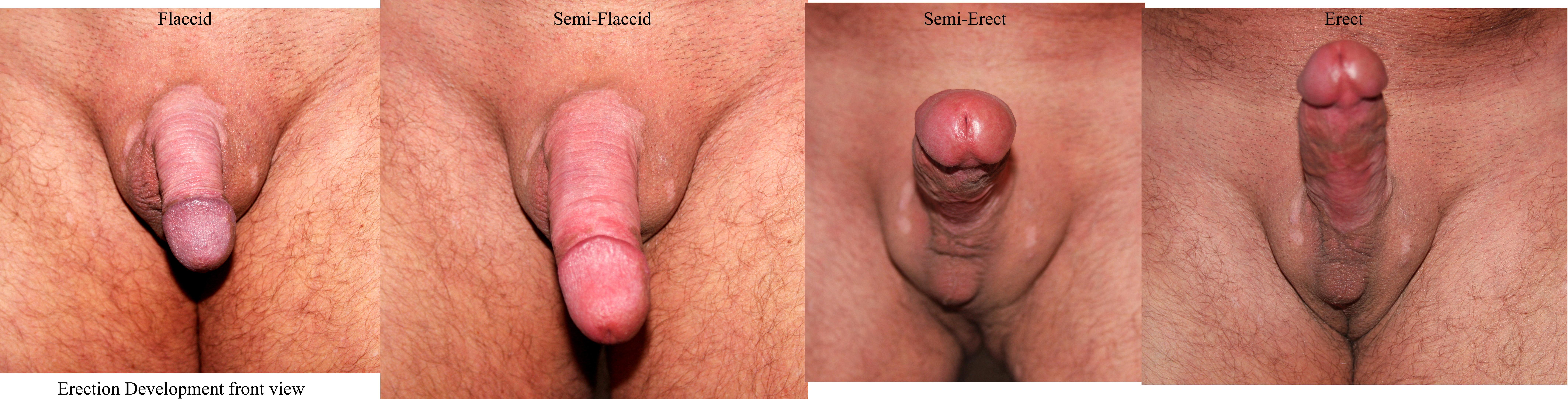 pics of hairy female bellies