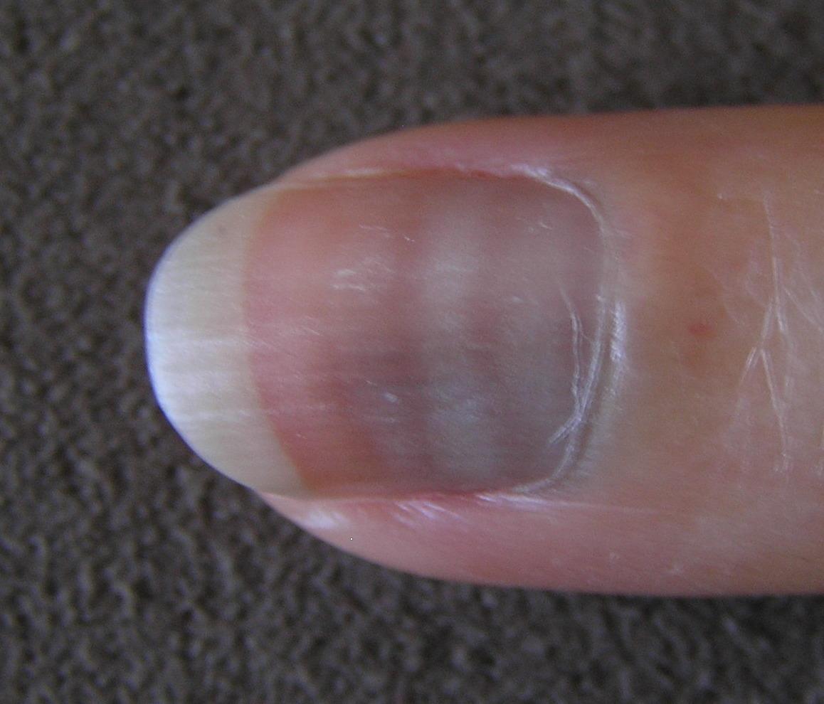lijnen op nagels