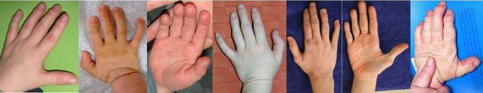 Pictures of the hands of NBS