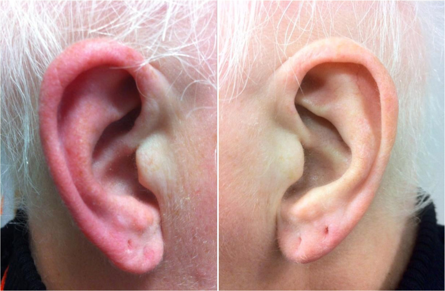 Red ear syndrome - Wikipedia