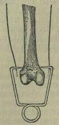 Рис. 5. Гвоздь, вбиваемый через мягкие ткани в кость.