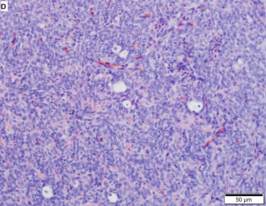 Granulosa cell tumor.