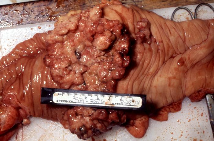 Image Result For Colon Cancer And