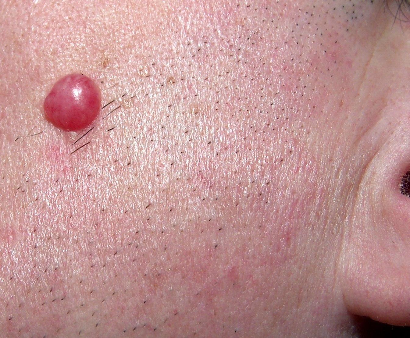 Lymphocytoma cutis | DermNet New Zealand