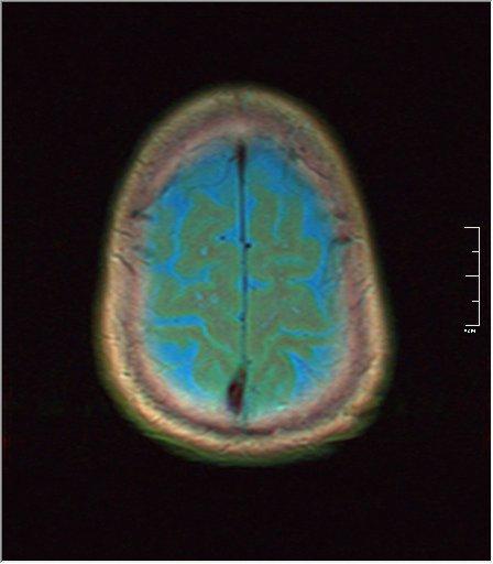 Brain MRI 0259 01.jpg